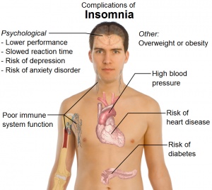 insomnia treatment with APS Therapy